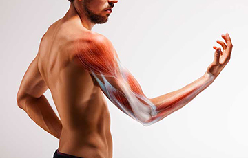 Biceps and Triceps Strains